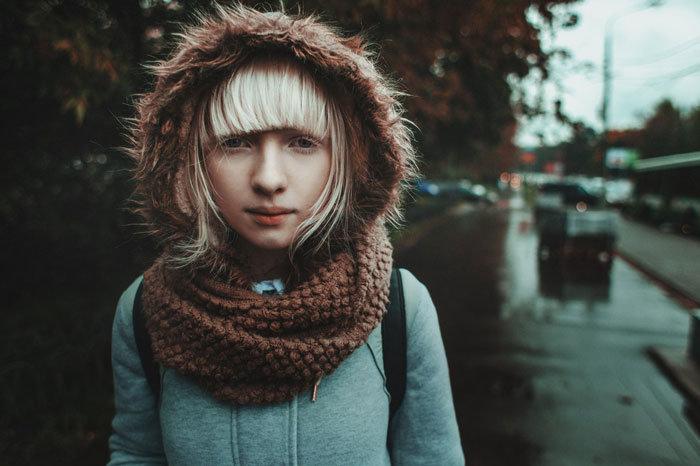 Albino Models_1
