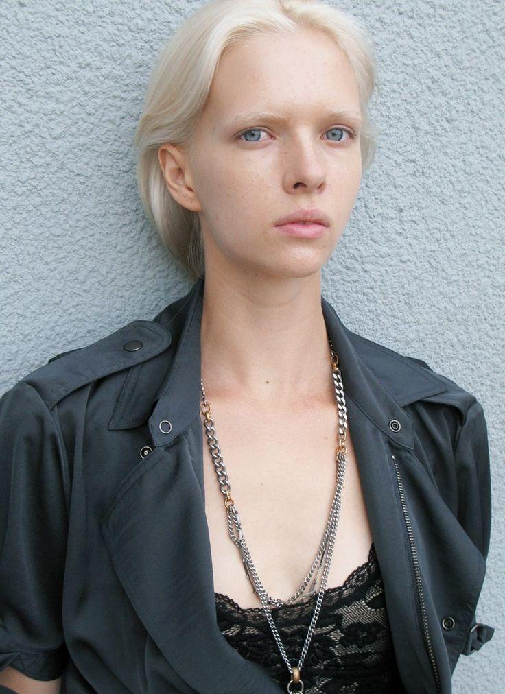 Albino Models_4_1