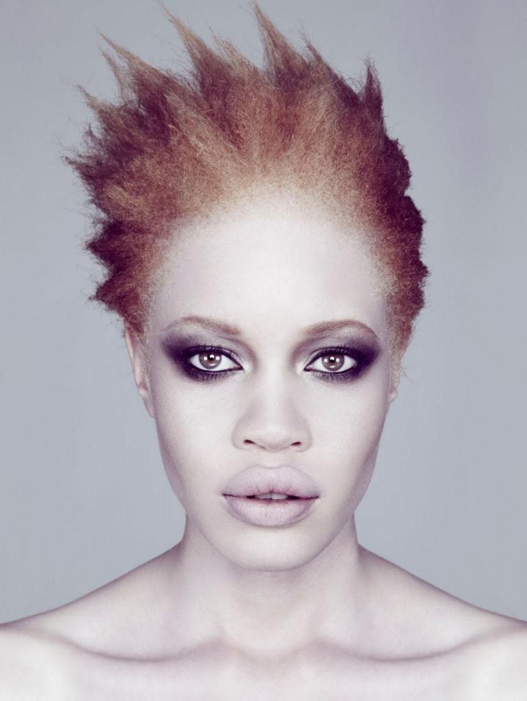 Albino Models_6