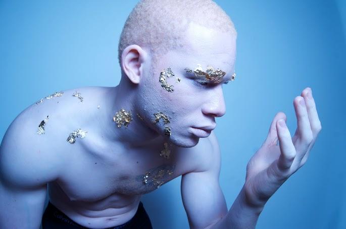 Albino Models_7