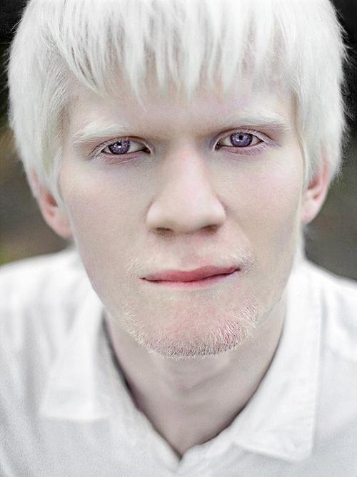 Albino Models_8