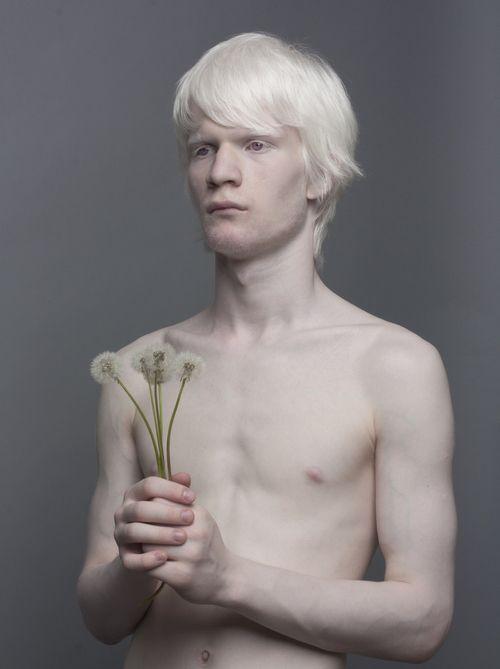 Albino Models_8_1