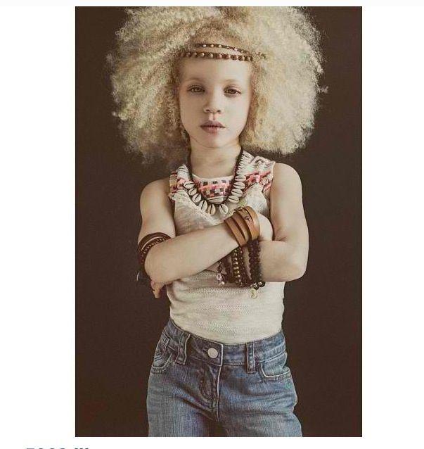 Albino Models_9_1
