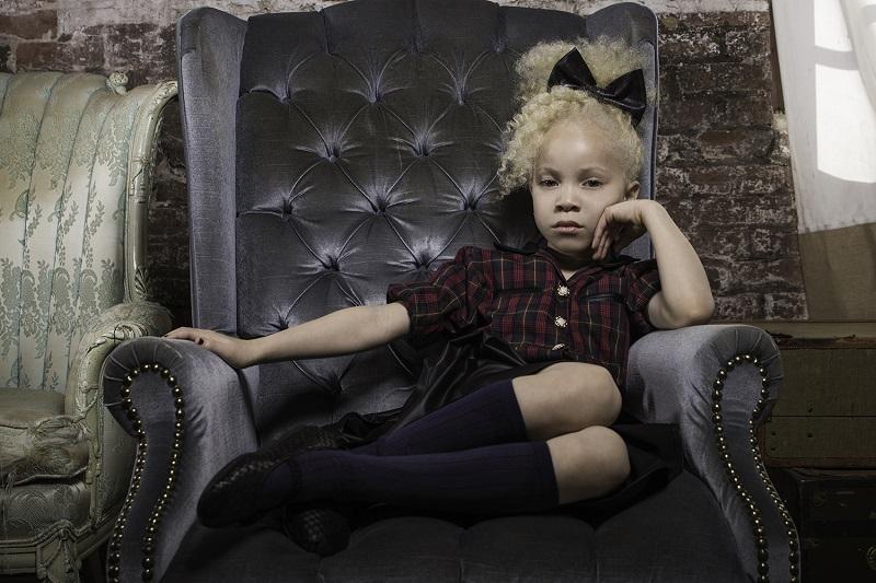 Albino Models_9_2