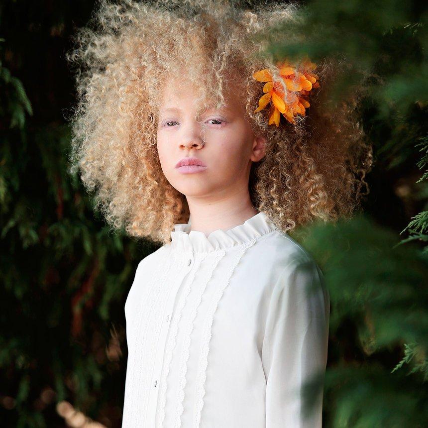 Albino Models_9_3