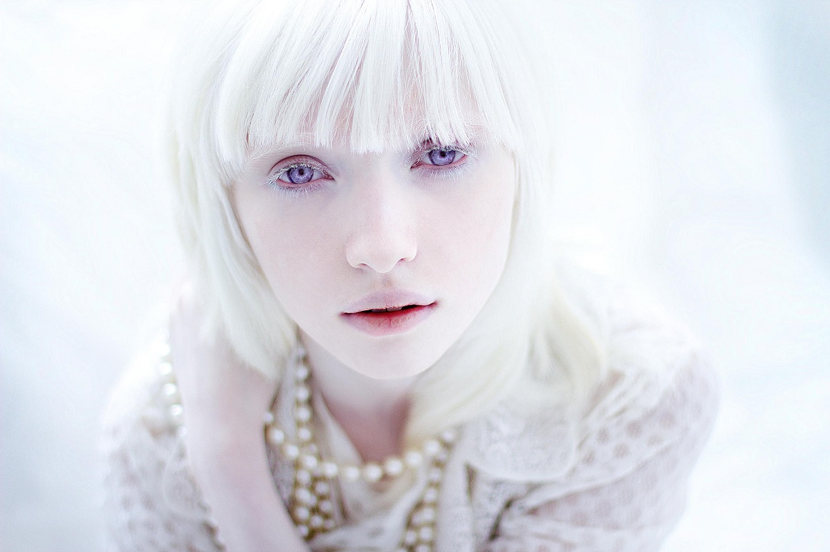 Albino Models_main