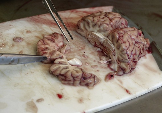 the oddest items people tried to smug_420 pounds of cow brains