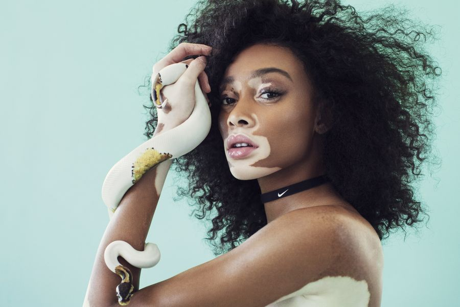 9 people with unique skin_Winnie Harlow